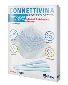 Connettivina Cer Hitech 6x7